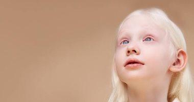 Photo of اليوم العالمي للتوعية بالمهق.. كيف يؤدى إلى سرطان الجلد